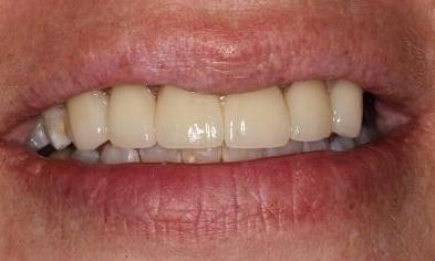 Cosmetic-Crowns-Patient-2-After-Image