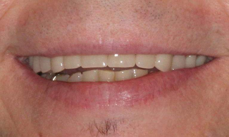 Denture-Partial-After-Image