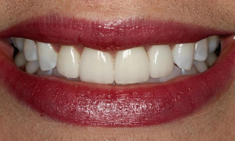 Veneers-Patient-1-After-Image