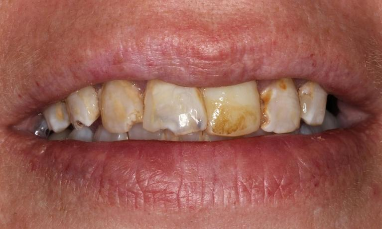 Cosmetic-Crowns-Patient-2-Before-Image