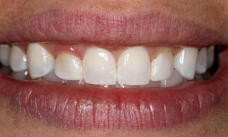 Veneers-Patient-1-Before-Image